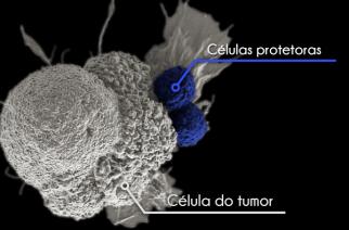 Imunoterapia pode combater câncer de colo de útero